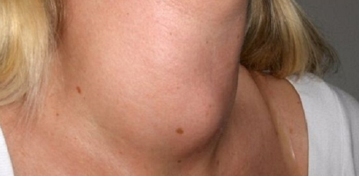Thyroid Nodules Treatment